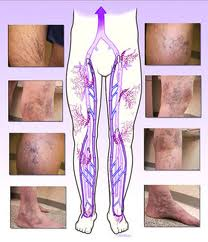 what is sclerotherapy